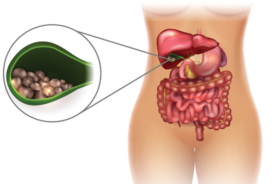 Diet Modification: The Remedial Measure for Gallstones