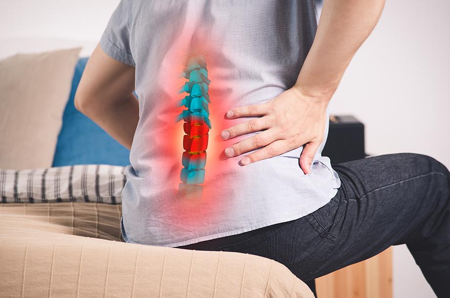 Home Remedies to Relieve Spondylitis Pain