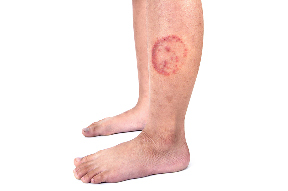 Ayurvedic treatment for ringworm