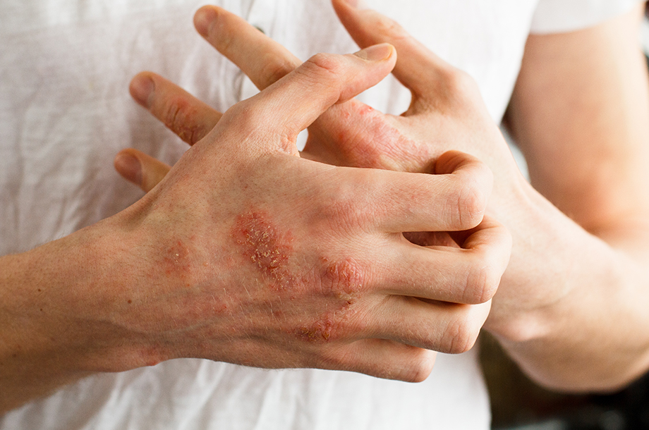 Which has the best treatment for ringworm, Ayurveda or Allopathy?