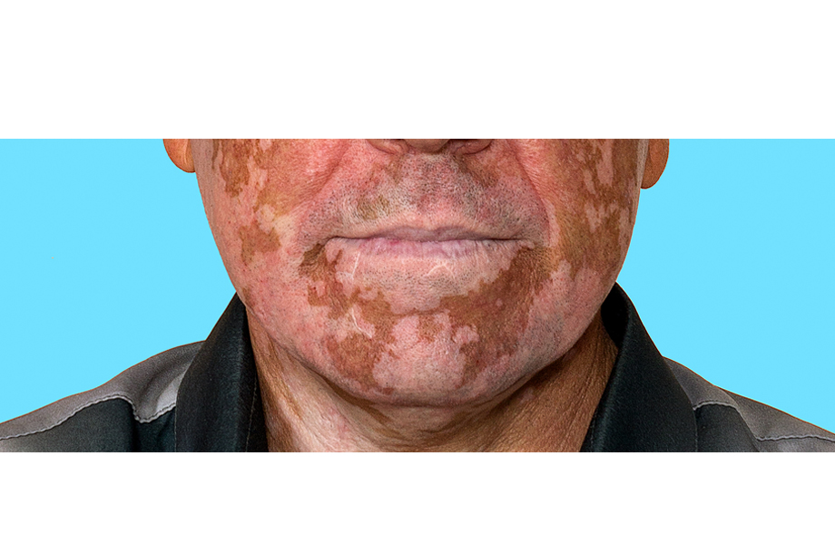 How To Cure Vitiligo Fast Naturally?