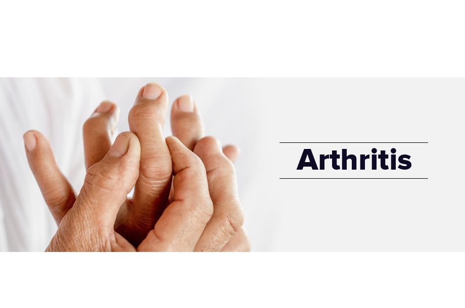 5 Best Ayurvedic Remedies For Arthritis