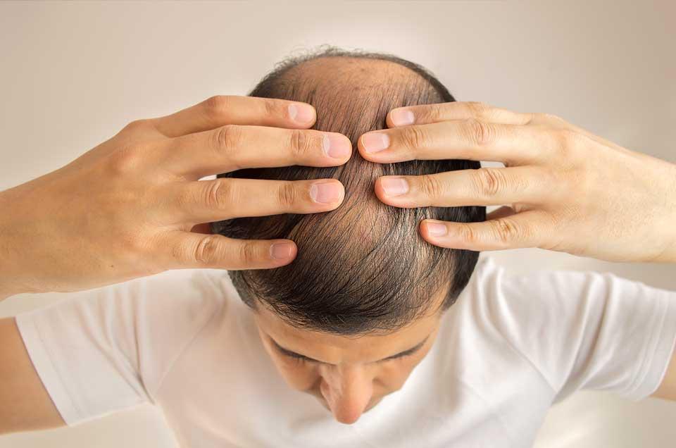 Get Rid of Dandruff, Hair Loss and Premature Graying