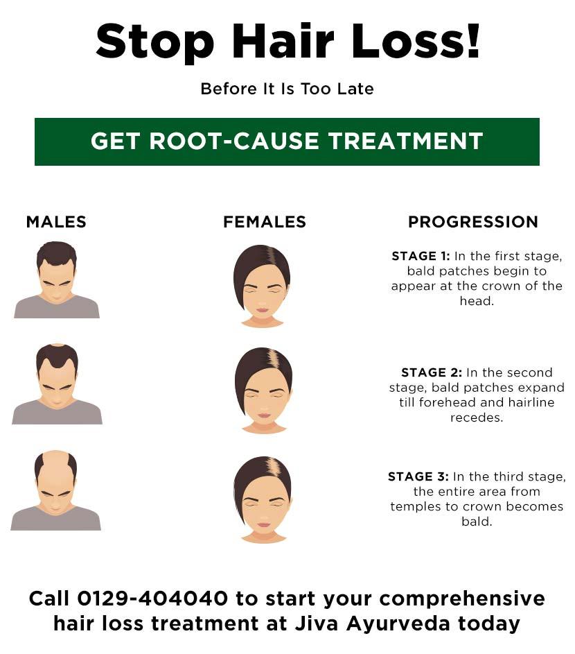 Stop Hair Loss!