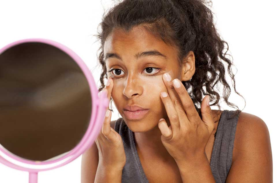5 natural remedies to reduce dark circles
