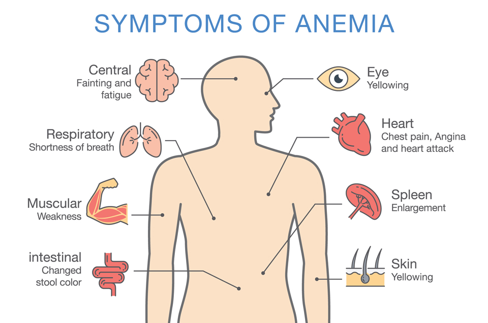 The Three Types of Anemia According to Ayurveda