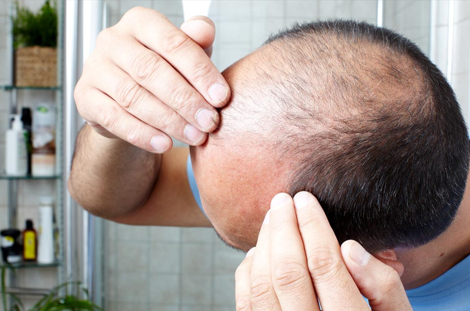 Alopecia and Pattern Baldness: Causes and Preventions