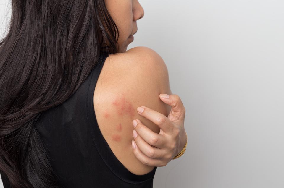 पित्ती (एलर्जी) का आयुर्वेदिक दृष्टिकोण