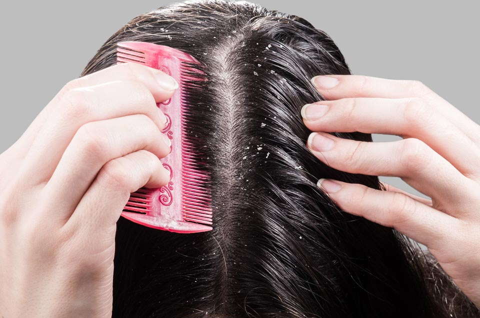 How to Treat Dandruff Effectively With Ayurveda
