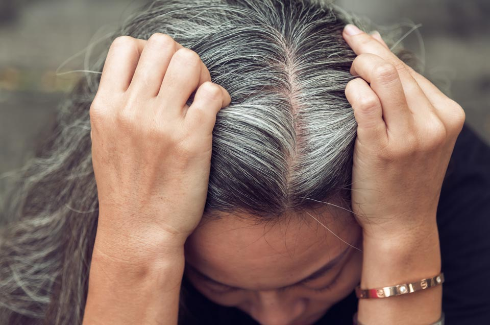 5 Natural Remedies Against Hair Loss and Premature Graying