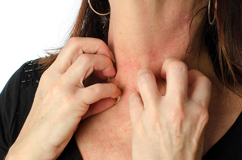Treat Skin Allergy with Ayurvedic Herbs