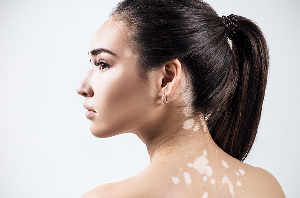 Use Natural Remedies for Relief in Vitiligo with Ayurveda