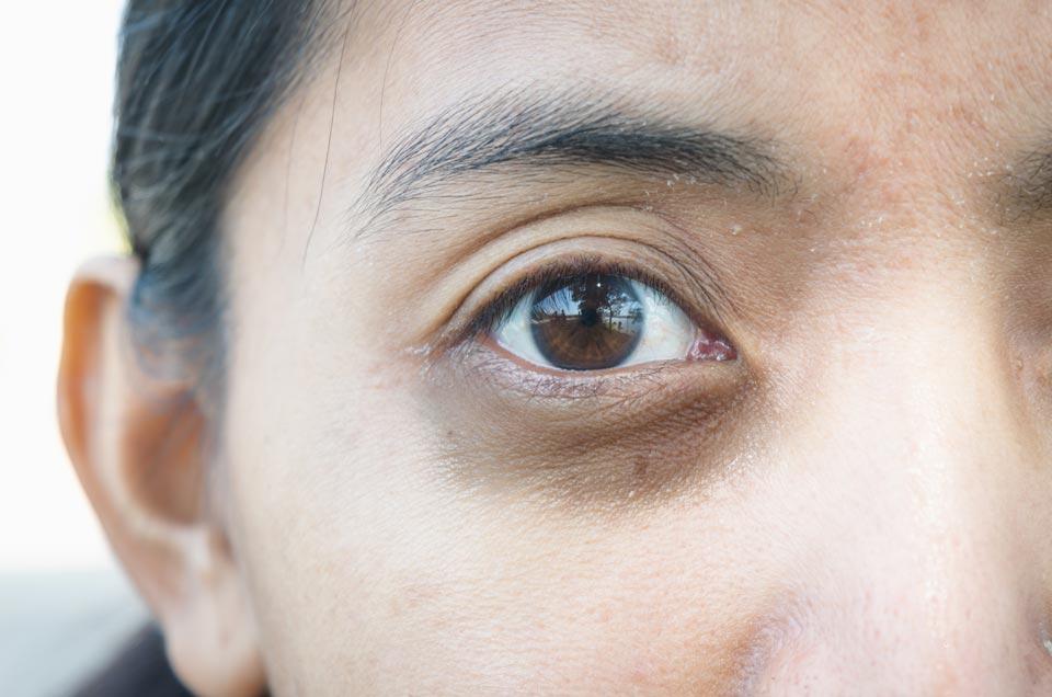 Treating Dark Circles And Wrinkles Around The Eyes With Ayurveda