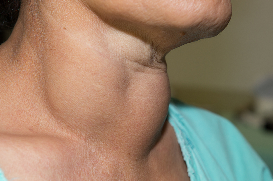 Understand these Thyroid Symptoms for Diagnosis and Treatment
