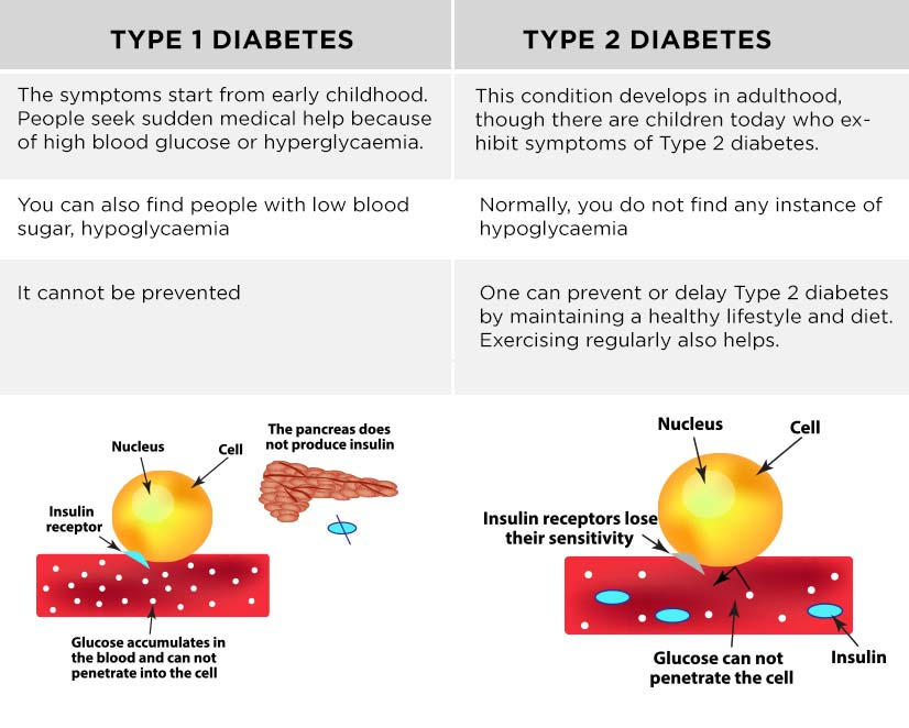 Difference between Type 1 and Type 2 Diabetes and their common symptoms