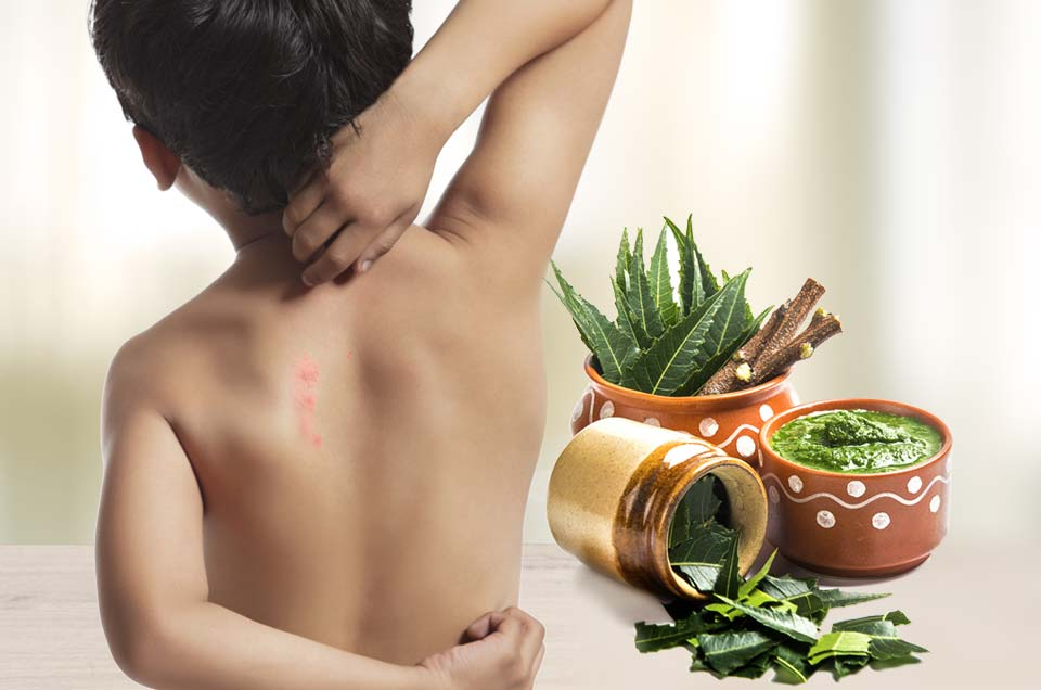 3 Simple Prickly Heat Home Remedies