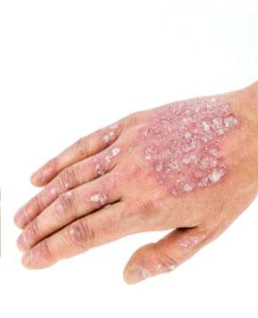Raised pus-filled skin bumps